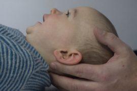 Kleinkind wird am Kopf behandelt